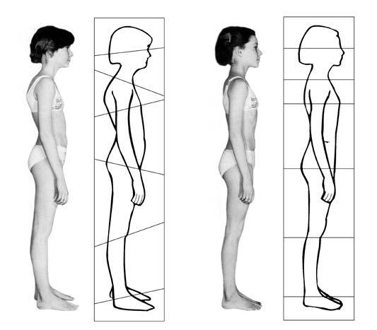 Die Abbildung oben zeigt ein Mädchen vor der ersten und nach der zehnten Rolfing® Sitzung. Die in den Umrisszeichnungen eingetragenen Achsen deuten die Ausrichtungen der einzelnen Körperblöcke an. Während die Achsen in der ersten Umrisszeichnung in unterschiedliche Richtungen zeigen, sind die einzelnen Körperblöcke nach den zehn Sitzungen wieder harmonisch ausgerichtet.